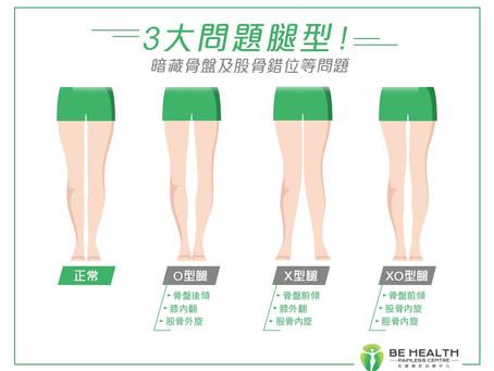 【X型、O型、XO型腿只影響外觀?其實暗藏盆骨及股骨錯位等問題!】
