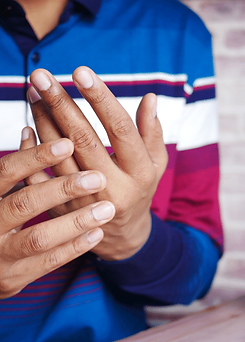 Chronic Illness Counselling - BIPOC man having pain in hand.