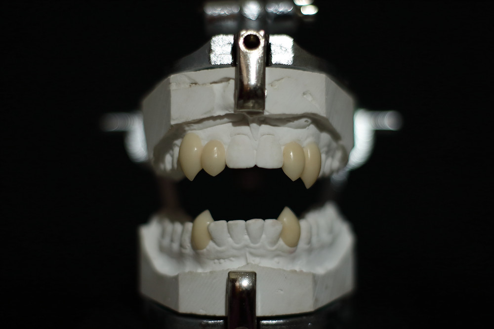 Triple set of vampire fangs including lower canines.
