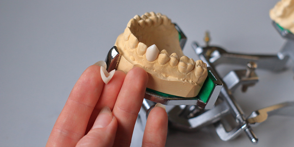 Showing acrylic cap fang and side view of fang on stone dental model