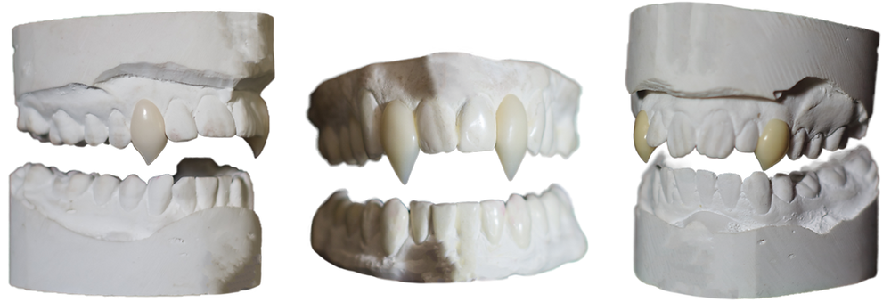 Custom made fangs will sure make a scene at your next vampire LARP.