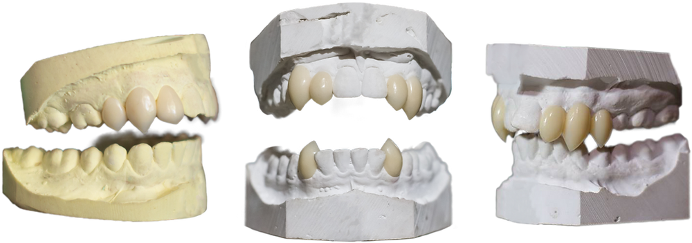 Three triple sets of vampire fangs. For a really razor sharp smile.