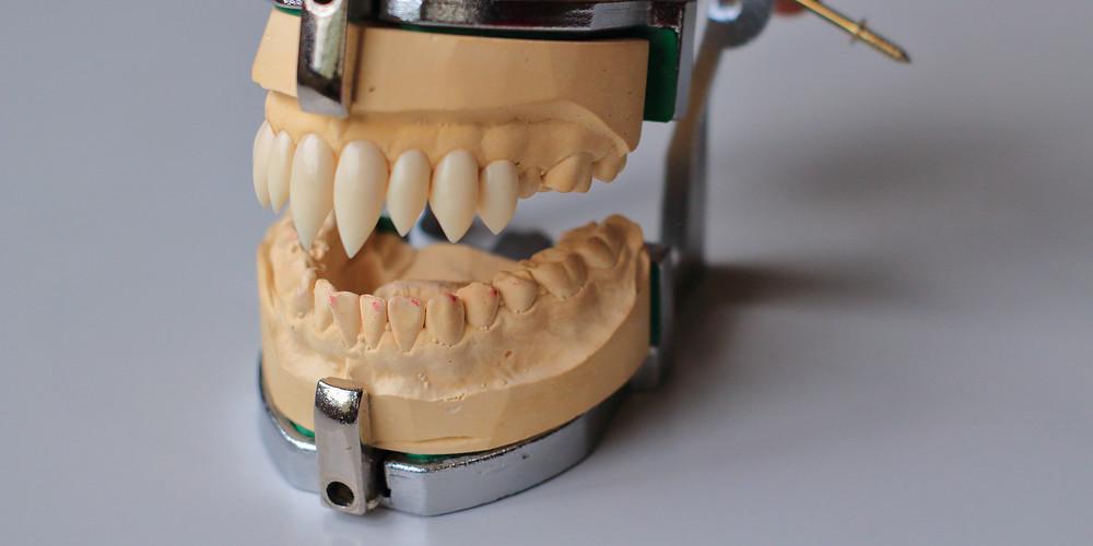 Nosferatu fangs on dental model attached to articulator