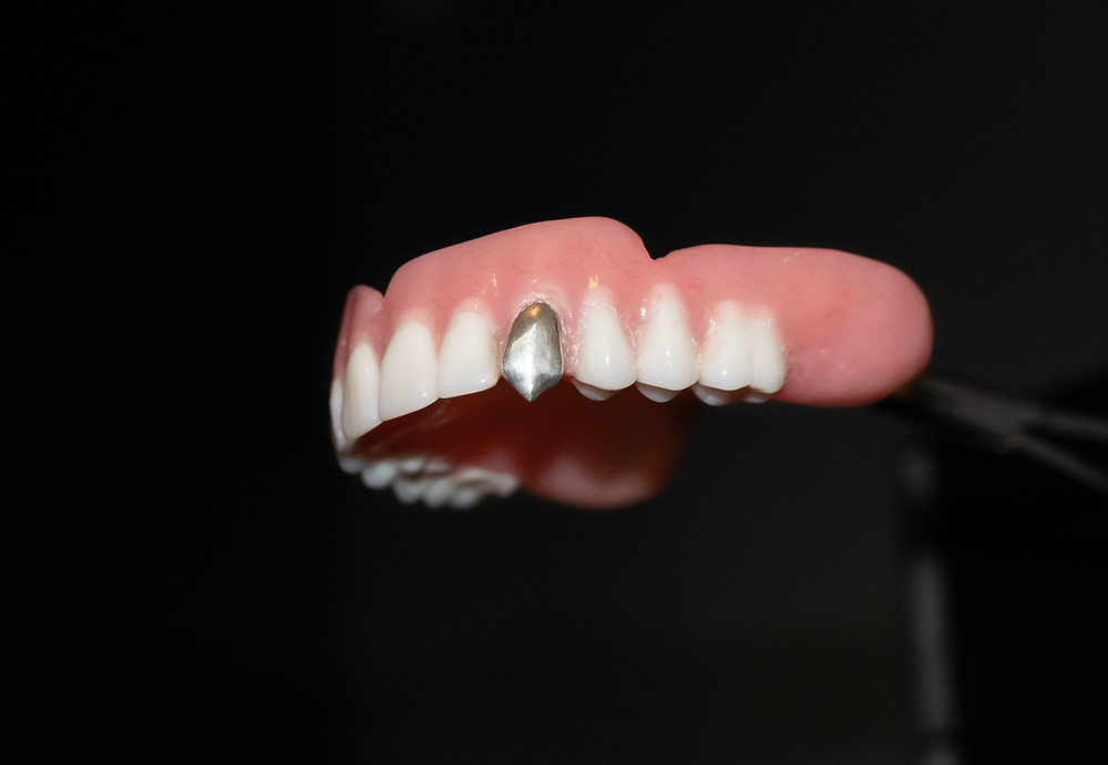 A denture customised with a real silver metal fang