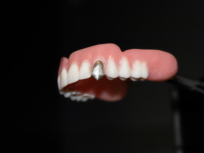 The Metal Will Live On-Metal Fangs That Is