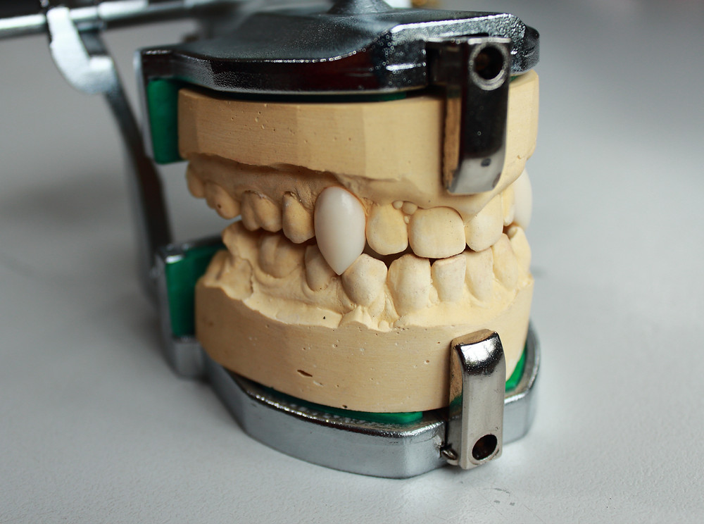 Set of vampire teeth on a stone dental model