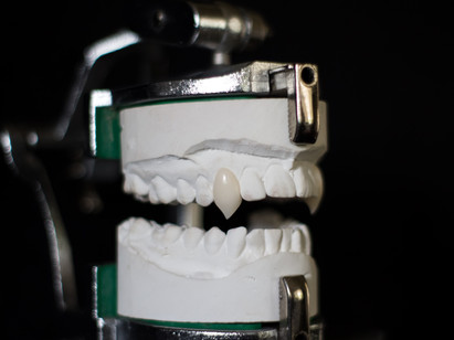 How to Get Vampire Teeth to Stay On!
