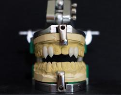 Realistic custom made vampire teeth