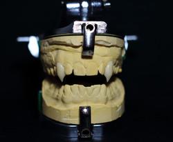 Custom vampire teeth