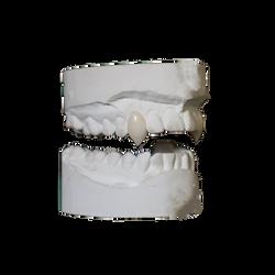 Sharp kitten fang teeth