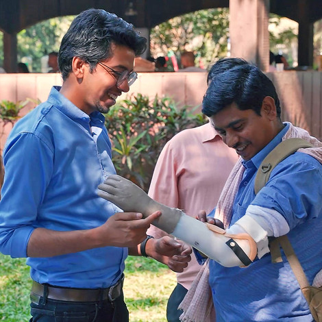 Free Prosthetic Arms For Disabled