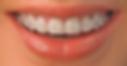 Ortodontia.png