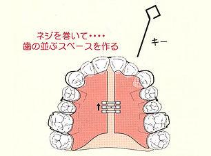 歯の並ぶスペースをつくり咬合育成