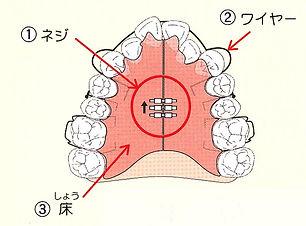 床矯正で顎のサイズを調整