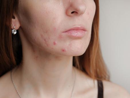 Gentle Skincare helps prevent Maskne