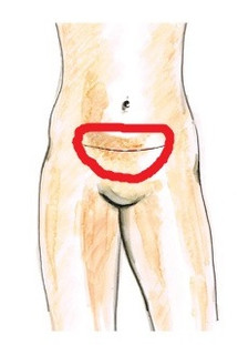 welche pille bei endometriose