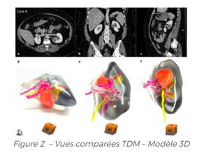 L'impression 3D au service du cancer du rein