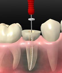 Endodoncia en Curanilahue
