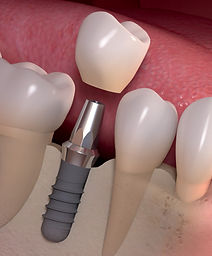 Implantes en Curanilahue
