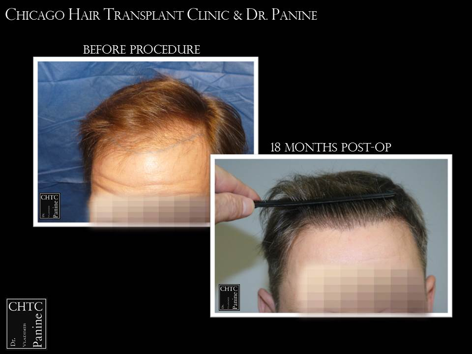 Hair Transplant with 2,664 Grafts