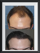 Results of hair transplant