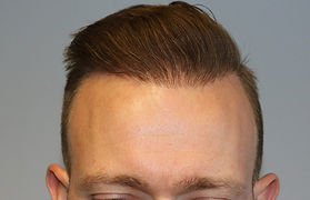 Photo of patient after hair transplant