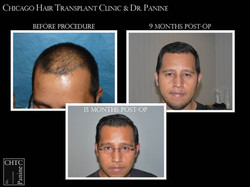 Hair Restoration with 3,775 Grafts