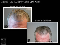 Rebuilding a Hairline FUE