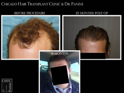 Natural and Permanent Results