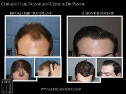 Restore your hair with Dr. Panine