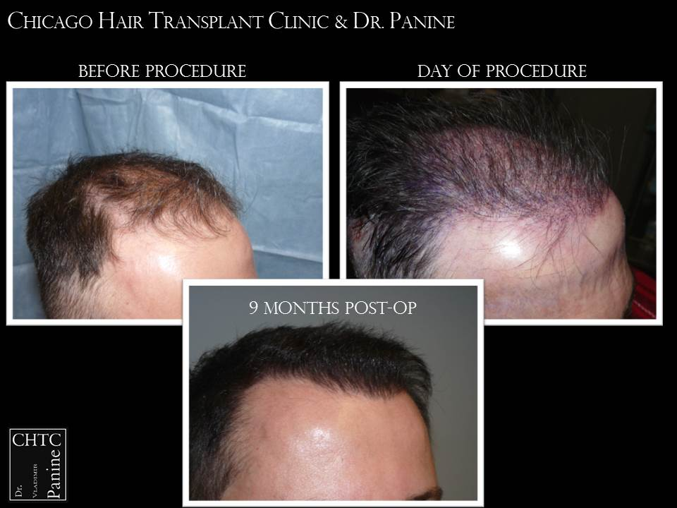 FUE Hair Restoration Patient Results