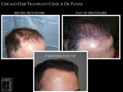 FUE Hair Restoration Patient Results