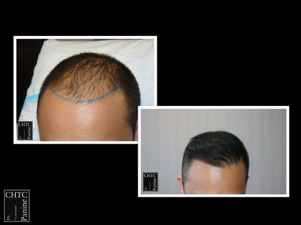 FUE Hair Surgery Results