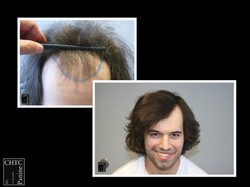 Before and After Hair Surgery