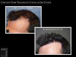 FUT Hair Transplant w/ 3,856 Grafts