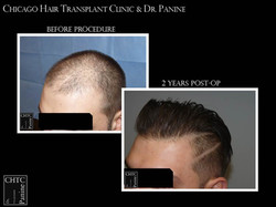 FUE Surgery to Restore Hair