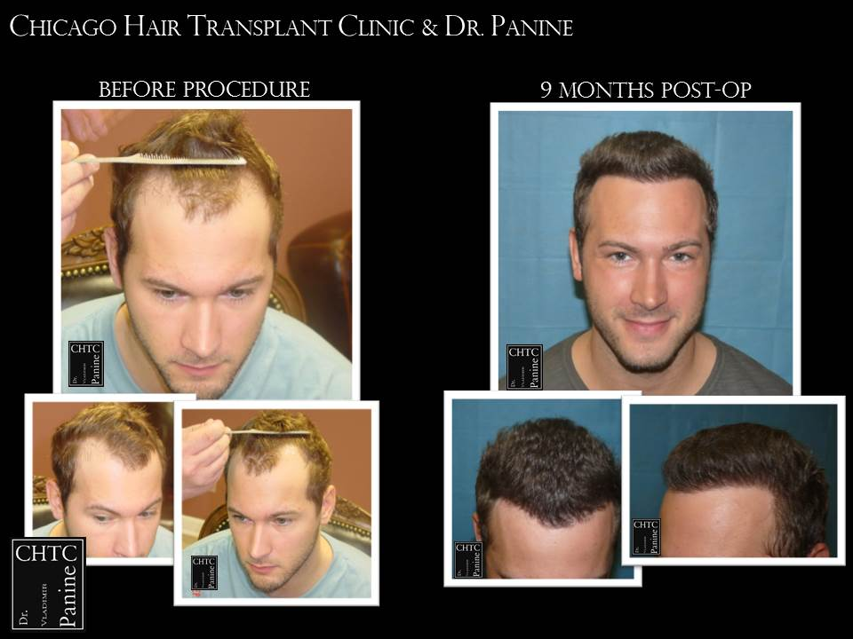 Correction of Prior Hair Transplant