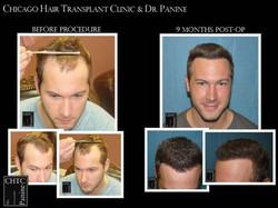 Correction of Prior Hair Transplant