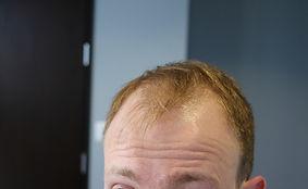 Amazing Results of Hair Transplat