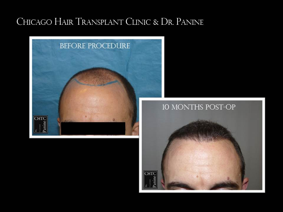 Hair Restoration - 3,981 Grafts