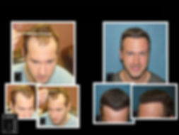Results of Hair Transplant Correction