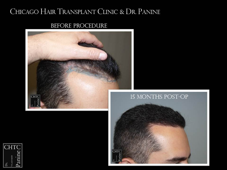 Hair Transplant with 2,164 Grafts