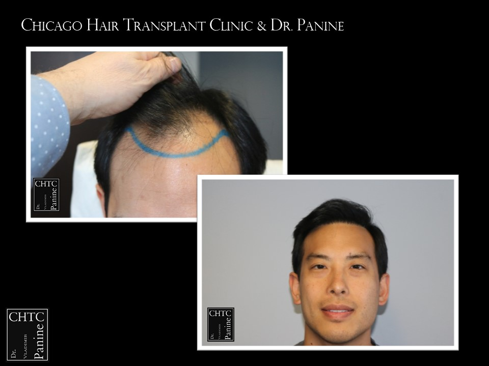 Get Hair - This patient did!