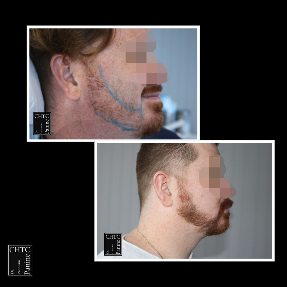 Beard Transplant for Added Density
