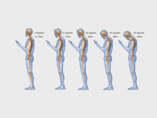 Text Neck is becoming an epidemic and could wreck your spine.
