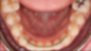 sabit retainer.png