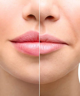 Lip-Injections-and-Fillers_edited.jpg