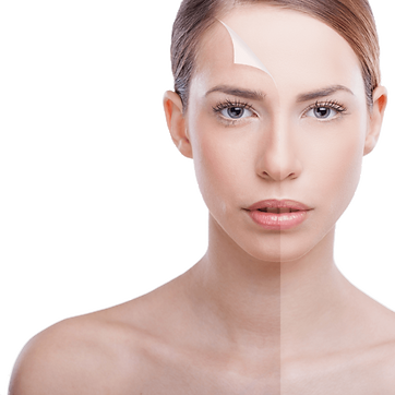 kisspng-chemical-peel-exfoliation-facial-photorejuvenation-plump-5b0d051bbc4b09.4887942715