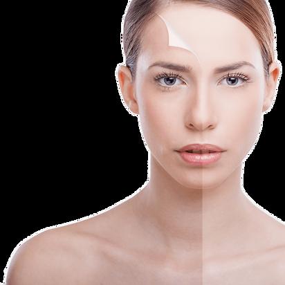 Ridge Aesthetics Chemical Peel Skin Peel Facial Peel