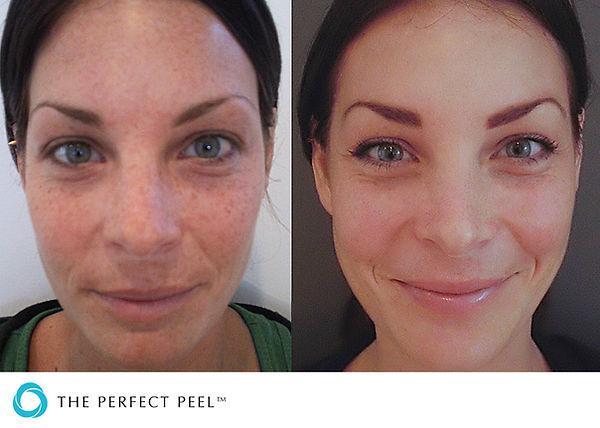 The Perfect Peel Acne Treatment Anti aging pigmentation